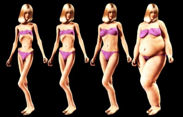 Анорексия булемия ожирение